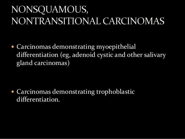Metastatic high grade serous carcinoma of ovary