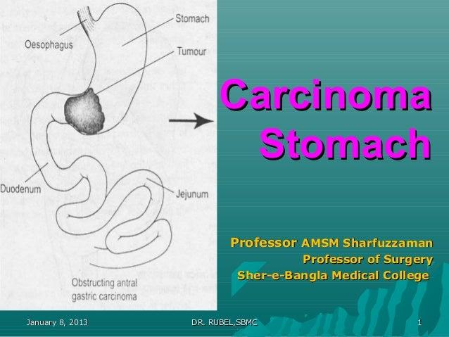 Carcinoma                        Stomach                          Professor AMSM Sharfuzzaman                             ...