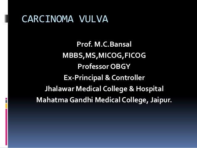 CARCINOMA VULVA             Prof. M.C.Bansal         MBBS,MS,MICOG,FICOG             Professor OBGY         Ex-Principal &...