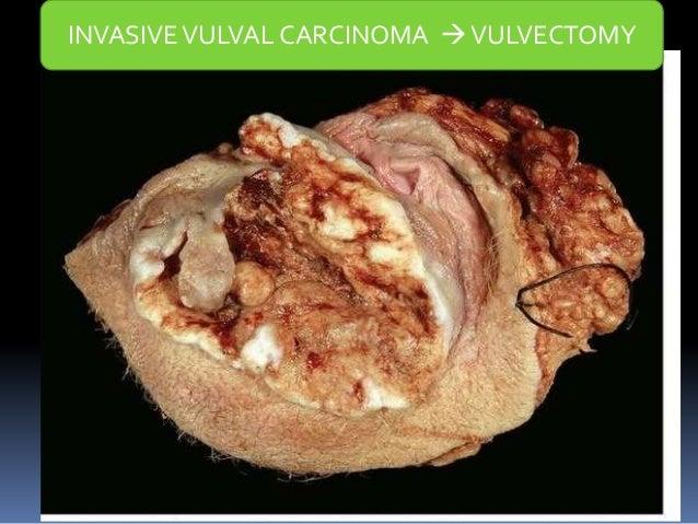 vulva cancer images  Vulvar Cancer
