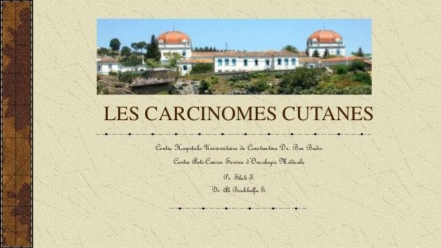 LES CARCINOMES CUTANES Centre Hospitalo-Universitaire de Constantine Dr. Ben Badis Centre Anti-Cancer Service d'Oncologie ...