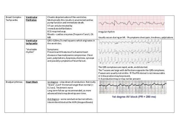 Broad Complex Tachycardia Ventricular fibrillation Chaoticdepolarisationof the ventricles. Mechanicallythisresultsinanarre...