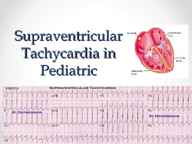 Image result for pediatric ventricular tachycardia