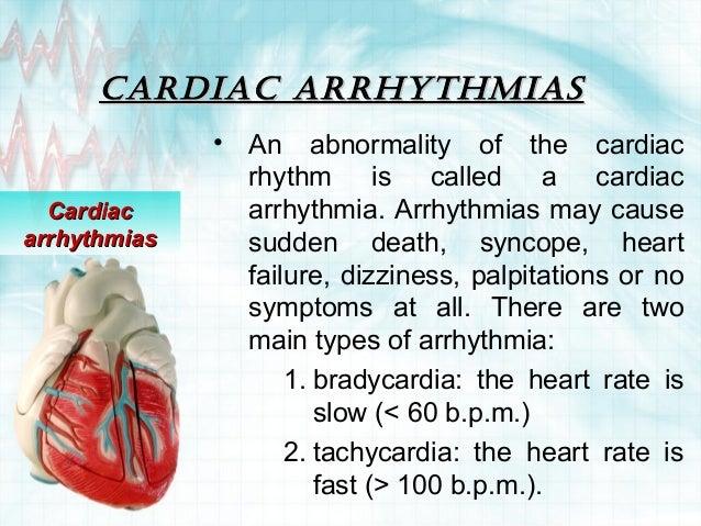 Cardiac arrhythmias Slide 2