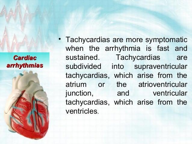 Cardiac arrhythmias Slide 3