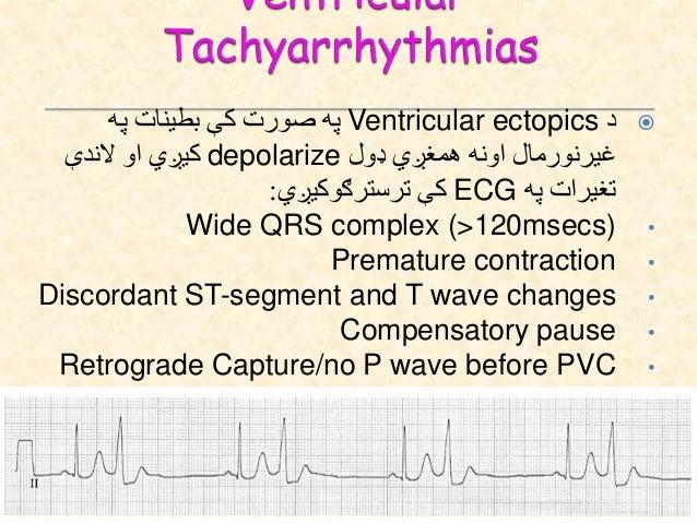 .8دVentricular Fibrillationاسباب: Myocardial ischemia/infarction Electrolyte imbalance Cardiomyopathy Long QT Bru...