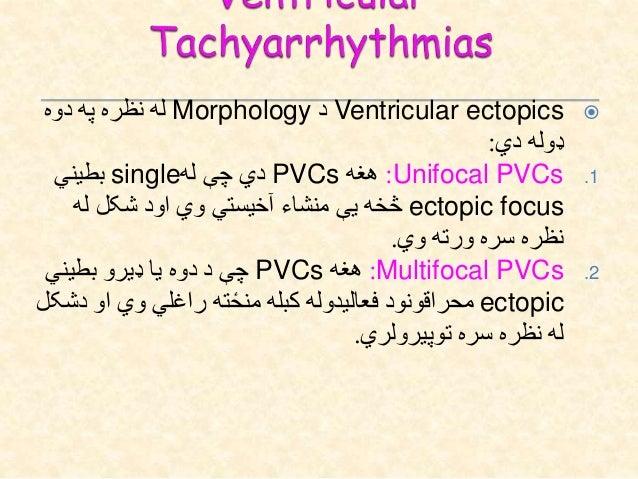 دVentricular Tachyarrhythmiasلوحه کلینیکي: Palpitations Dizziness Exercise intolerance Presyncope Syncope Sudd...