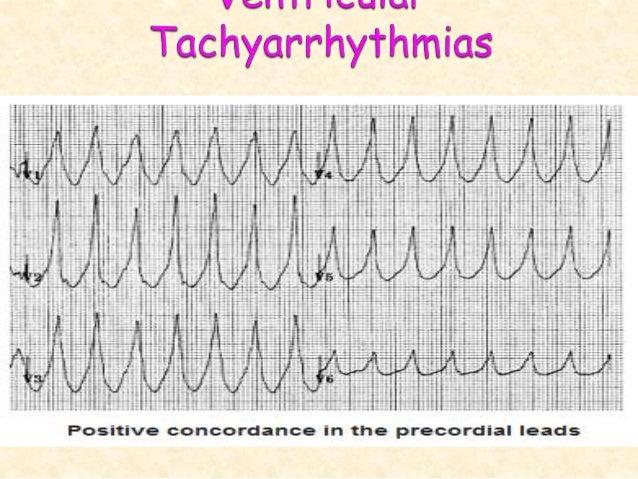 .3دVentricular fibrillationدرملنه: علت وړ ارجاع او تداوۍ د که کې حالت پدې(IHD،MI، Bradyarrhythmia...