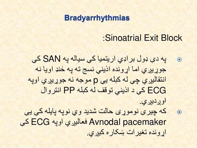 Sinoatrial Exit Block: First degree SAEB:اذیني سیاله کې حالت دې په لپار دتشخیص اما انتقالیږي سره ځ...