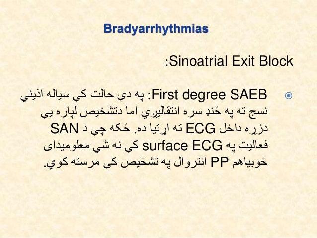 Sinoatrial Exit Block: Mobitz Type II:کې هرسایکل په کې حالت دې په یوهPتوقف اذیني د سره دې په ...