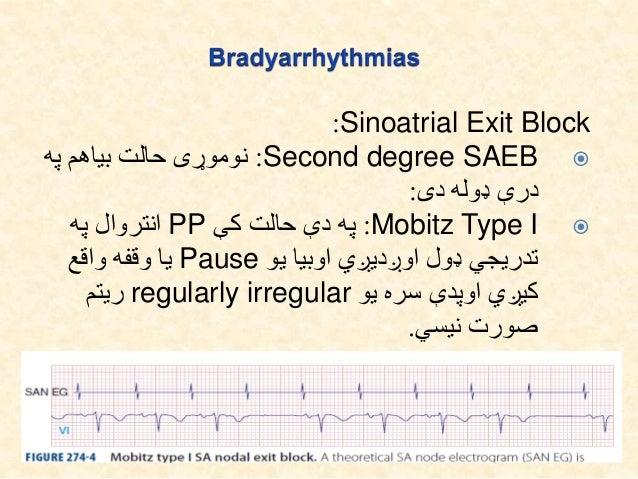 Sinoatrial Exit Block: High degree SAEB:هرو له کې حالت دې په زیاتو یا دووPوروسته څخه موجودیت نه...