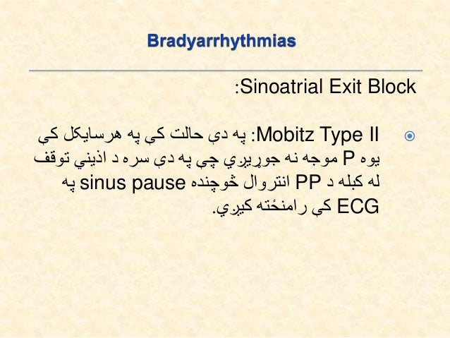 Sinoatrial Exit Block: Third degree SAEB:کې حالت دې پهpموجه د هم دلته او وي نه موجوده هیڅPPڅوچ...
