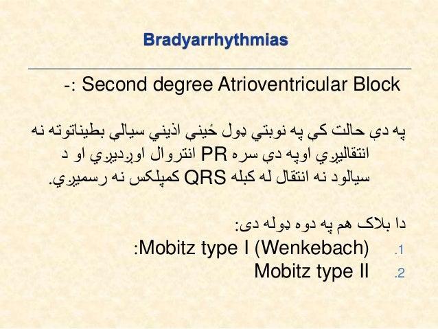 Third Degree AVBlock: پهدېډولبالککېهیڅاذینيسیالهبطیناتوتهنهانتقالیږي.