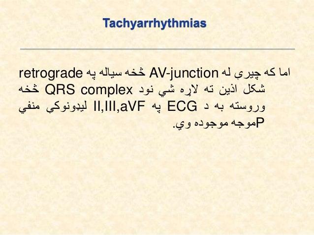 .1Atrial Regular SVT: Sinus tachycardia Sinus node re-entrant tachycardia Atrial tachycardia (unifocal) Atrial flutter...