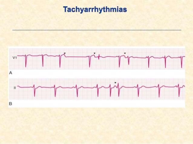 .2Atrial irregular SVTs: Atrial tachycardia (multifocal) Atrial flutter (with variable Av-block) Atrial fibrillation .3...