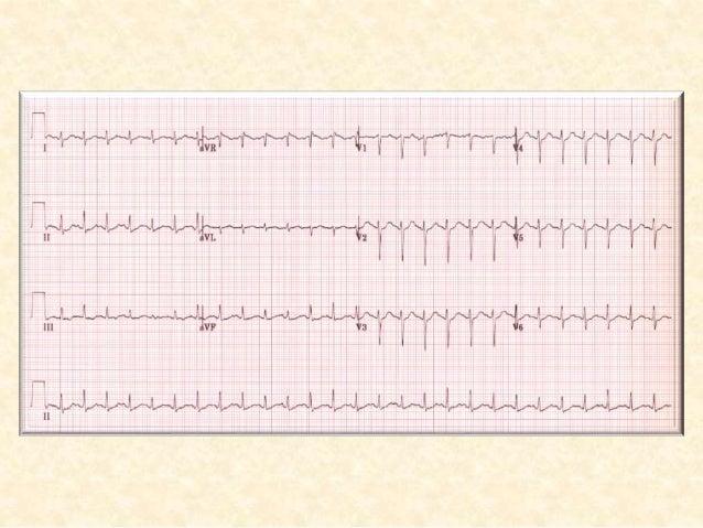 دAFاسباب:  Ischaemic heart disease  Hypertension  Valvular heart disease (esp. mitral stenosis / regurgitation)  A...