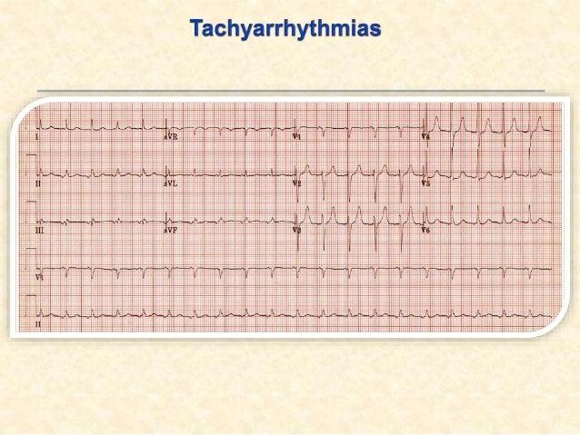 II:AV-JUNCTIONAL SVT ATRIOVENTRICULAR TACHYCARDIA .1AV-nodal re-entry tachycardia (AVNRT):هغه په چې کاردیا تکيA...