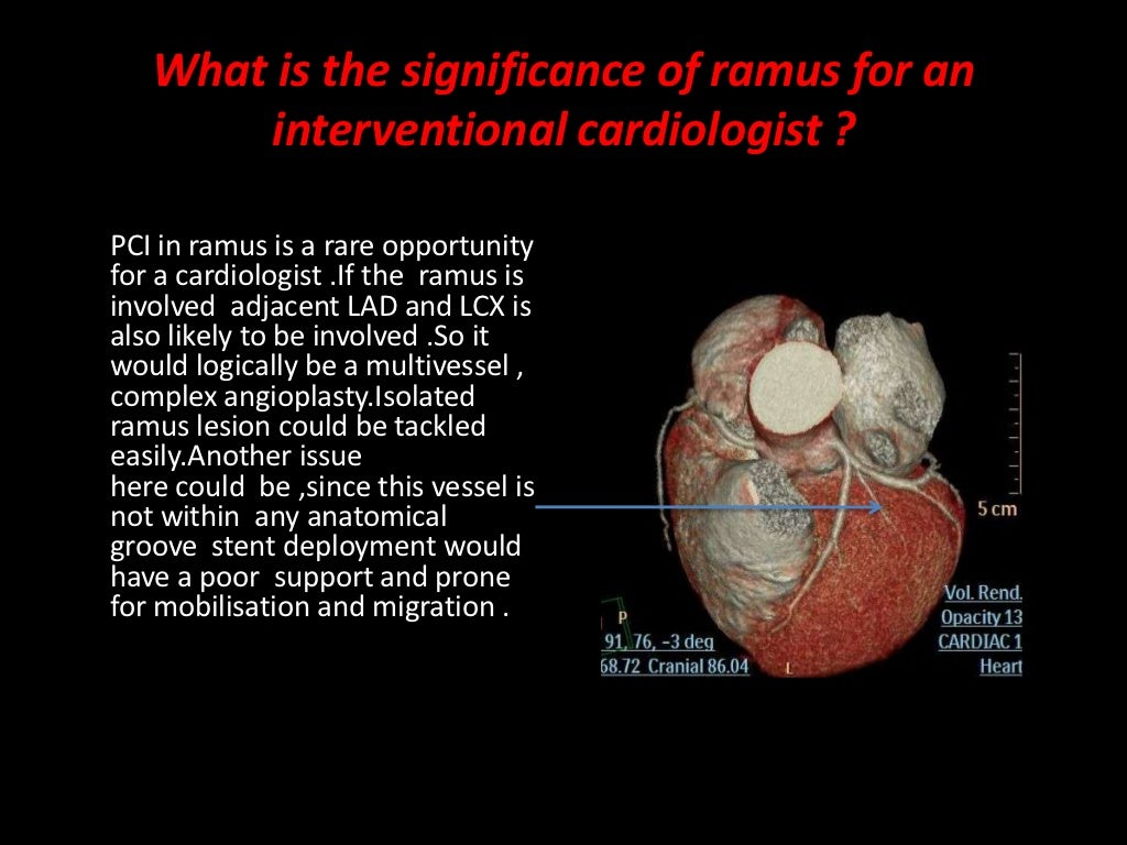 Cardiac case series ramus intermedius
