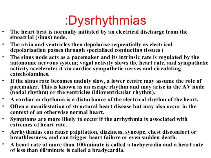 Pictures Of Dysrhythmias 13