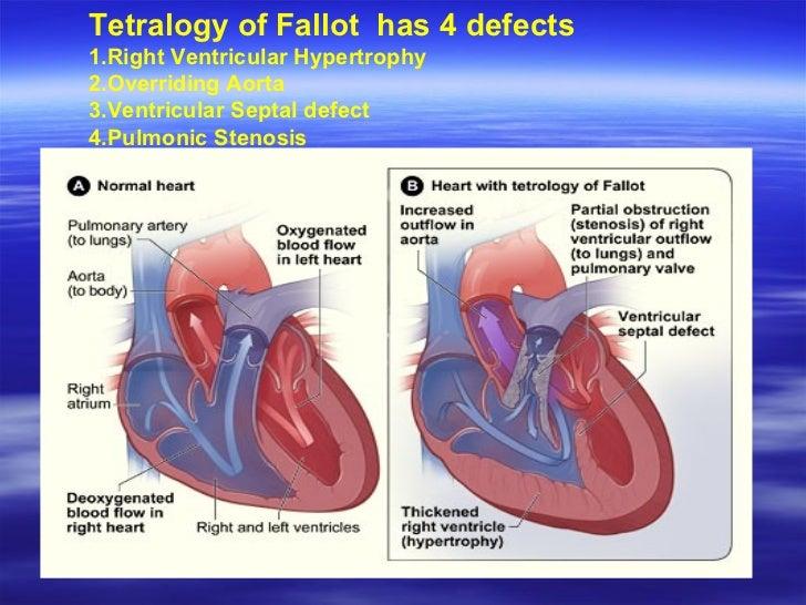 tetralogy of fallot pathophysiology pdf