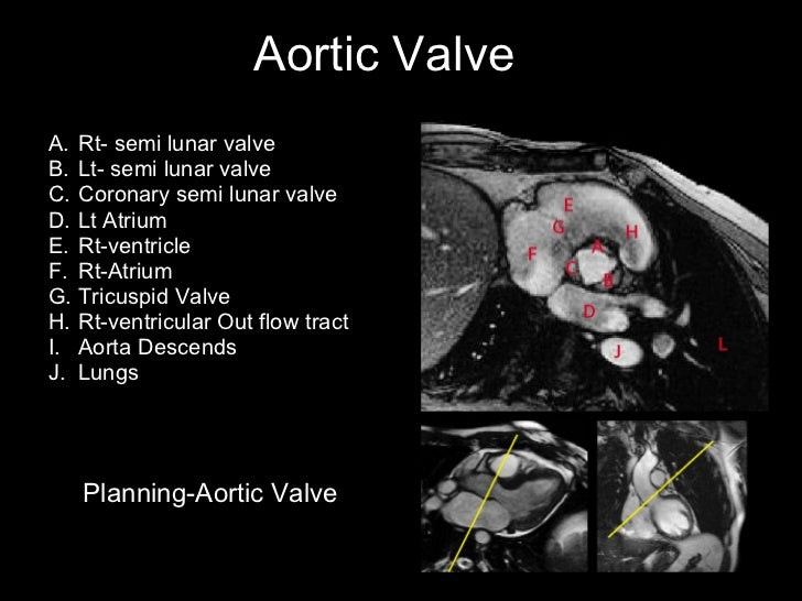 Cardiac mri&slice anatomy