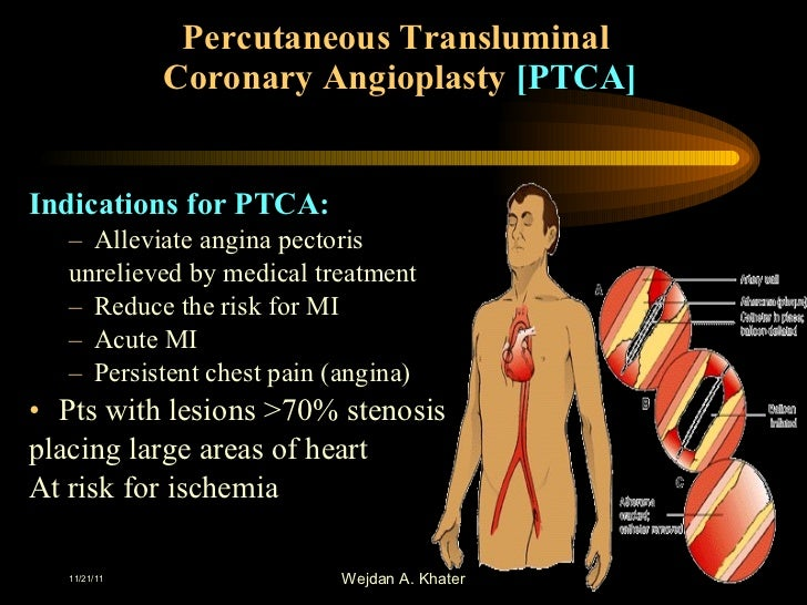 percutaneous transluminal coronary angioplasty essay Percutaneous transluminal angioplasty and unitedhealthcare® medicare advantage policy guideline percutaneous coronary interventions page 2 of 5.