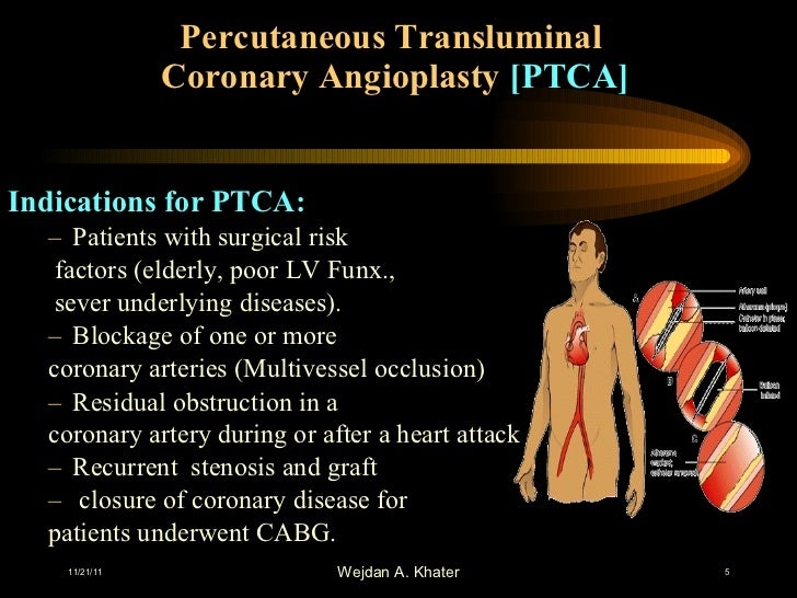 the risks of percutaneous coronary angioplasty Eart oundation coronary angioplasty and stents 8  as with most medical procedures, there are some risks of having coronary angioplasty however, serious problems are rare most people have no trouble during or after the procedure, and  artery bypass surgery for percutaneous coronary interventions journal of the american college of.