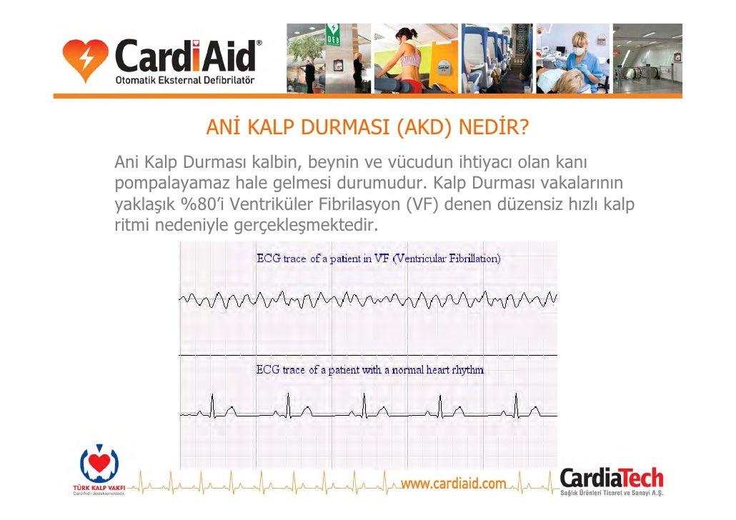 ANİ KALP DURMASI (AKD) NEDİR? Ani Kalp Durması kalbin, beynin ve vücudun ihtiyacı olan kanı pompalayamaz hale gelmesi duru...