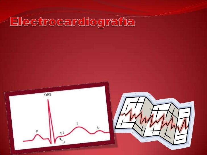  Es el registro gráfico de las variaciones del potencial eléctrico producidas por la actividad del corazón, las cuales so...