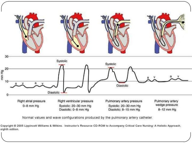 right ventricular and left ventricular cardiogenic shock Cardiogenic shock (cs) (eg, left ventricular [lv] cardiogenic shock caused by right ventricular infarction.