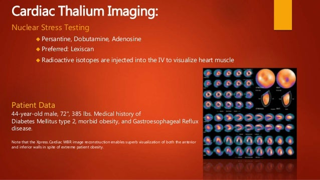 Stressed Images 13 Cardiac Thalium Imaging Nuclear Stress Testing Persantine
