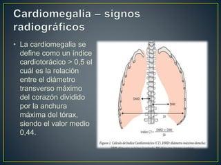 Cardiomegalia comision 6