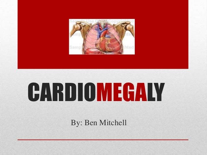 Heart PowerPoint Templates