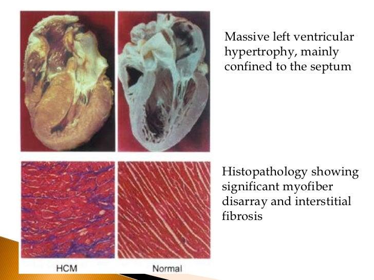 Subaortic Obstruction Diastolic Dysfunction Myocardial Ischemia Mitral Regurgitation Arrythmias