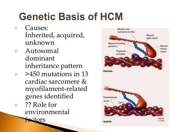    Cause -Assymetrical Septal Myocardial Hypertrophy   Unlike Aortic stenosis hypertrophy begets pressure gradient , not...