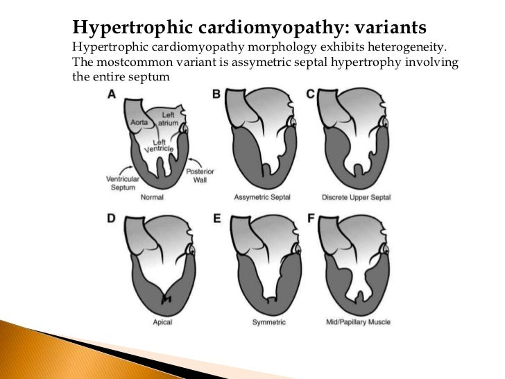    Subaortic Obstruction    Cause-Hypertrophic septum encroaching on the systolic    outflow tract    Bounded-Anteriorly ...