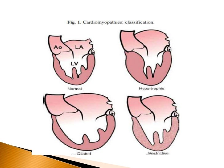    DCM is most common of all CMs(60%)   Aetiology    -Idiopathic (50%)    -Myocarditis (9%)    -Ischemic (7%)    -Others...