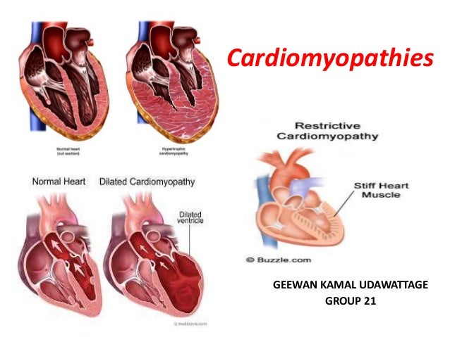 cardiomyopathies-1-638?cb=1458157699, Skeleton