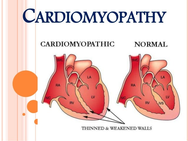 heart muscle disease cardiomyopathy