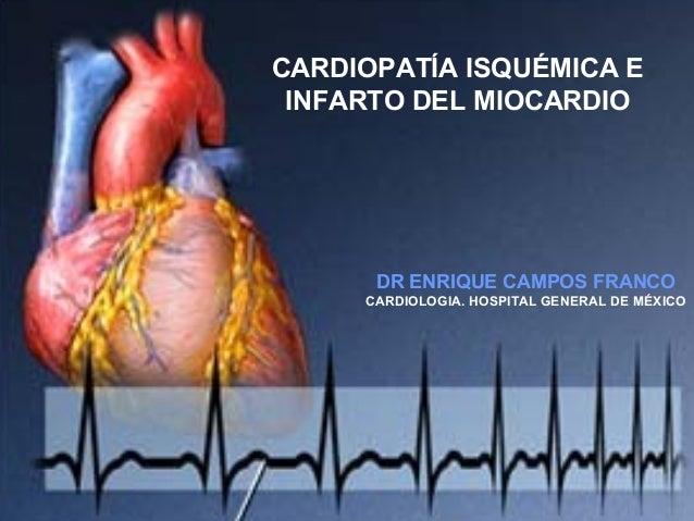 CARDIOPATÍA ISQUÉMICA E INFARTO DEL MIOCARDIO  DR ENRIQUE CAMPOS FRANCO CARDIOLOGIA. HOSPITAL GENERAL DE MÉXICO