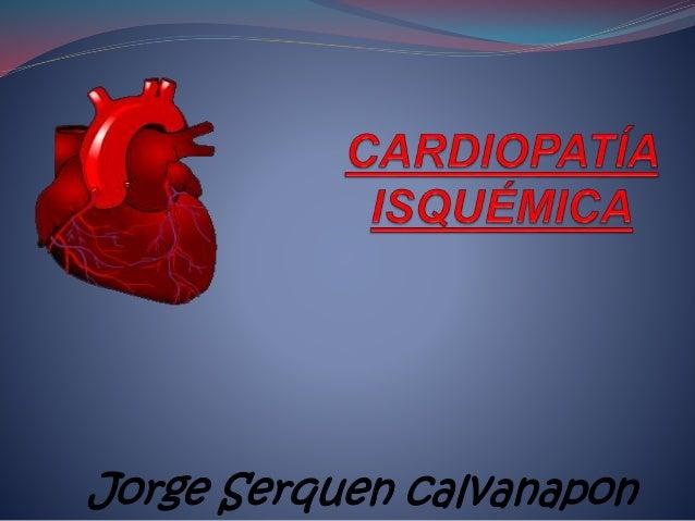 Jorge Serquen calvanapon