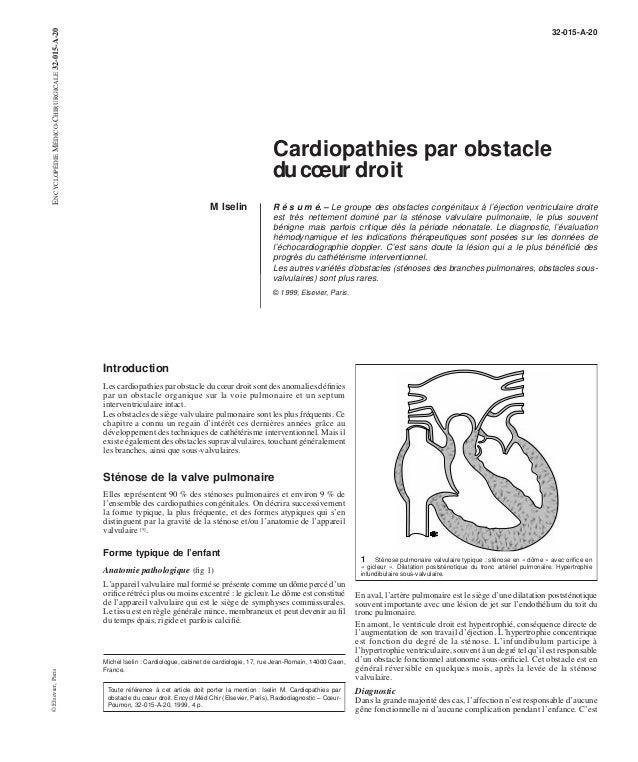 32-015-A-20  Cardiopathies par obstacle  duc oeur droit  M Iselin R é s u m é. – Le groupe des obstacles congénitaux à l'é...