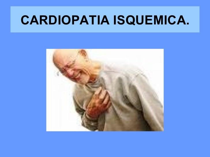CARDIOPATIA ISQUEMICA.