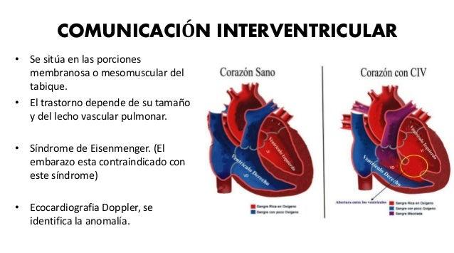 SINDROME DE EISENMENGER • Inversión del flujo de un shunt de izquierda a derecha debido a la hipertensión pulmonar progres...