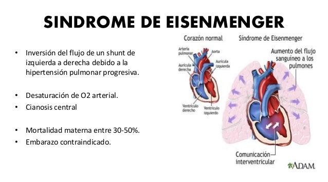 CONDUCTO ARTERIOSO PERSISTENTE • Es un vaso que va de la bifurcación de la arteria pulmonar a la aorta. • Síndrome de Eise...
