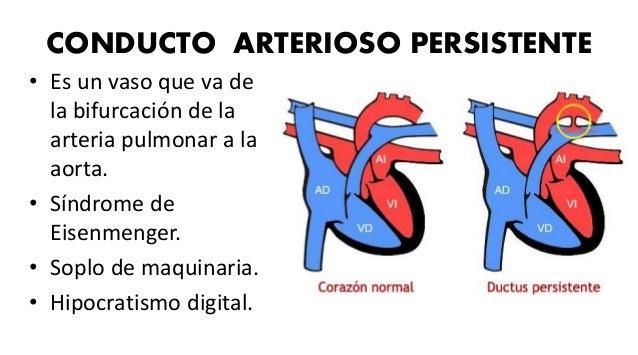 CORTOCIRCUITOS DE RAIZ AÓRTICA Y MITAD DERECHA DEL CORAZÓN • Aneurisma del seno de Valsalva aórtico: • Separación o ausenc...