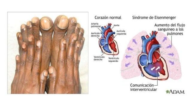CORTOCIRCUITOS DE RAIZ AORTICA Y MITAD DERECHA DEL CORAZÓN • Fistula arteriovenosa coronaria: • comunicación entre una art...
