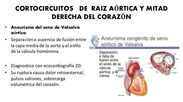 CORTOCIRCUITOS DE RAIZ AORTICA Y MITAD DERECHA DEL CORAZÓN • Nacimiento anómalo de la arteria coronaria izquierda (Arteria...