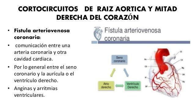ESTENOSIS VALVULAR AÓRTICA • Obstruye el infundíbulo de salida del ventrículo izquierdo. • Puede ser subaortica o supraval...