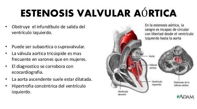 ESTENOSIS PULMONAR • Es un signo de embriopatía por rubéola. • Un factor determinante es la intensidad de la lesión obstru...